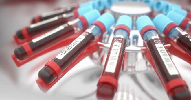 1 группа крови – особенности положительного и отрицательного резусов