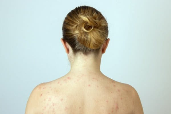 Актинический кератоз: симптомы, диагностика и лечение