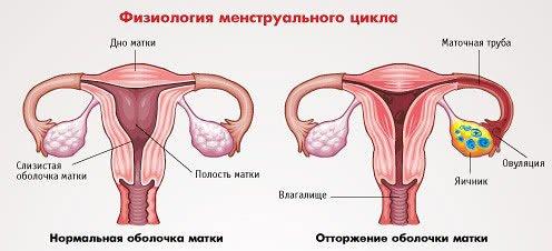 Что такое аменорея?
