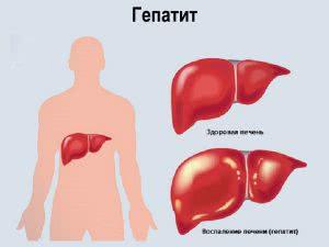 Хронический гепатит C: симптомы, лечение, осложнения