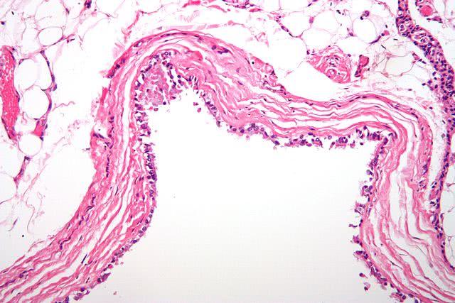 Исследователи нашли вещества, препятствующие гибели клеток