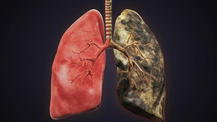Метастазы в легких. Как проходят диагностика и лечение?