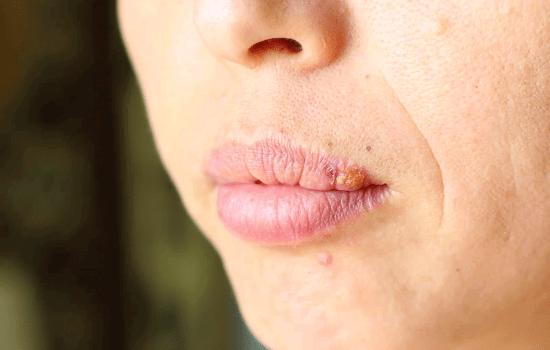 Можно ли быстро вылечить герпес на губах?