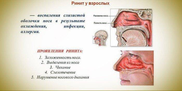 Причины ринита у взрослых — проявления острой и хронической формы, виды и лекарственная терапия