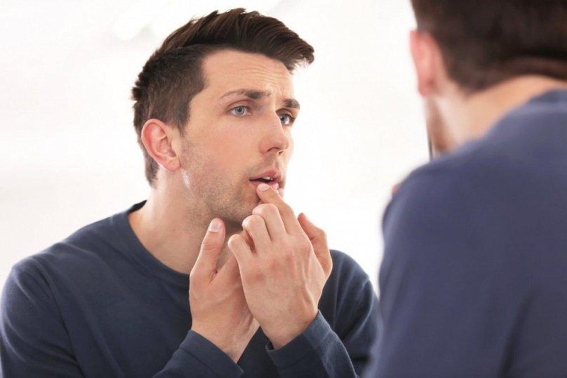 Причины темных пятен на губах: лекарства, витамины, что еще?