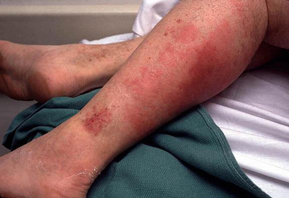 Рожа на ногах: причины и симптомы