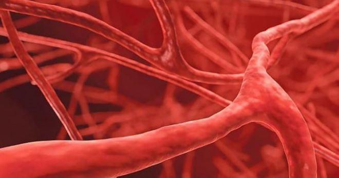 Васкулиты – что это такое, как различают и лечат все формы заболеваний?
