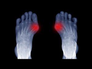 Жизнь без «шишек»: почему появляется косточка на большом пальце ноги и как ее удалить