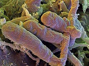 Грибы-дерматомицеты - возбудители грибка ногтей