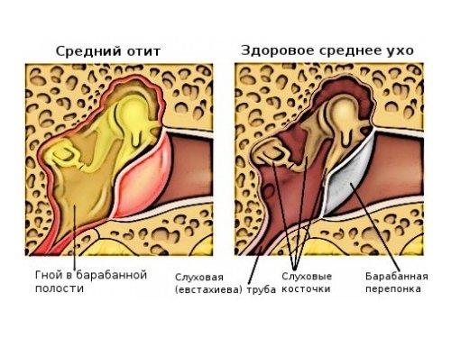 Отит - показание к прививке