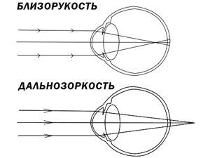 Польза Экстракта алоэ при дальнозоркости и близорукости