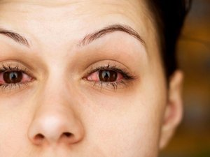Польза Экстракта алоэ при воспалении глаз