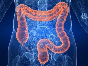 Польза Дюфалака при заболеваниях кишечника