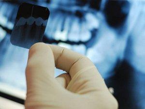 Рентген перед удалением нерва