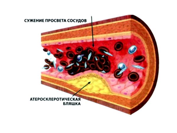 Польза облепихового масла для профилактики атеросклероза