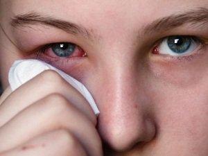 Лечение воспаления глаз гидрокортизоновой мазью