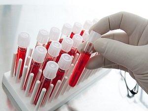 Анализ крови при сифилисе