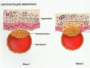 Имплантация эмбриона в матке