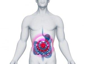 Сбой работы кишечника