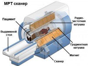 МРТ сканер