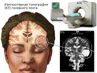 Выявление опухолей и других заболеваний головного мозга с помощью МРТ