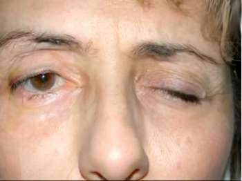 Неврит лицевого нерва у женщины