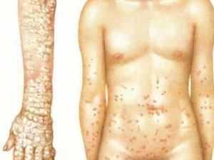 Покрывание кожи коркой при норвежской чесотке
