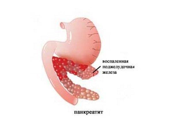 Панкреатит - причина отрыжки