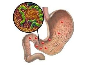 Попадание болезнетворных бактерий