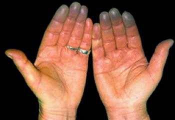 Посиневшие пальцы рук