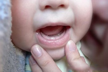Применение Калгеля при прорезывании зубов у малышей