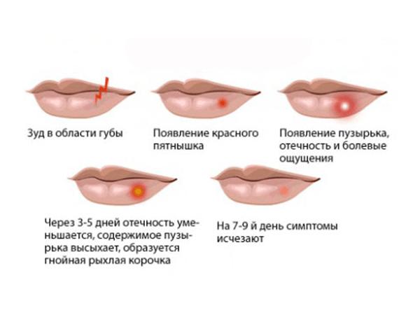 Схема развития герпеса на губах