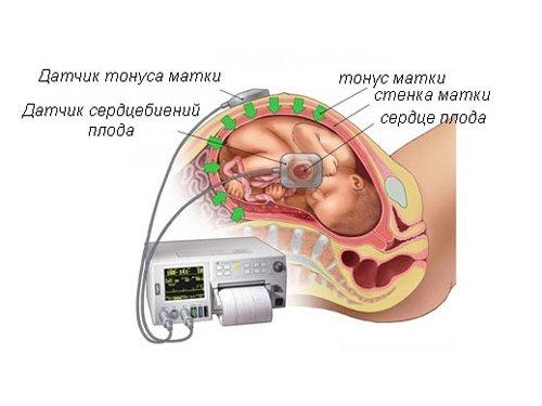Исследование тонуса матки при беременности