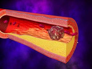 Опасность употребления кунжута при повышенной свертываемости крови