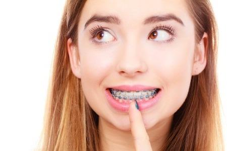 Можно ли ставить брекеты на импланты, коронки и пломбированные зубы?